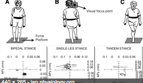 Hvornår er man rask Recovery of Static Stability Following a Concussion. Gait & Posture. 2013.
