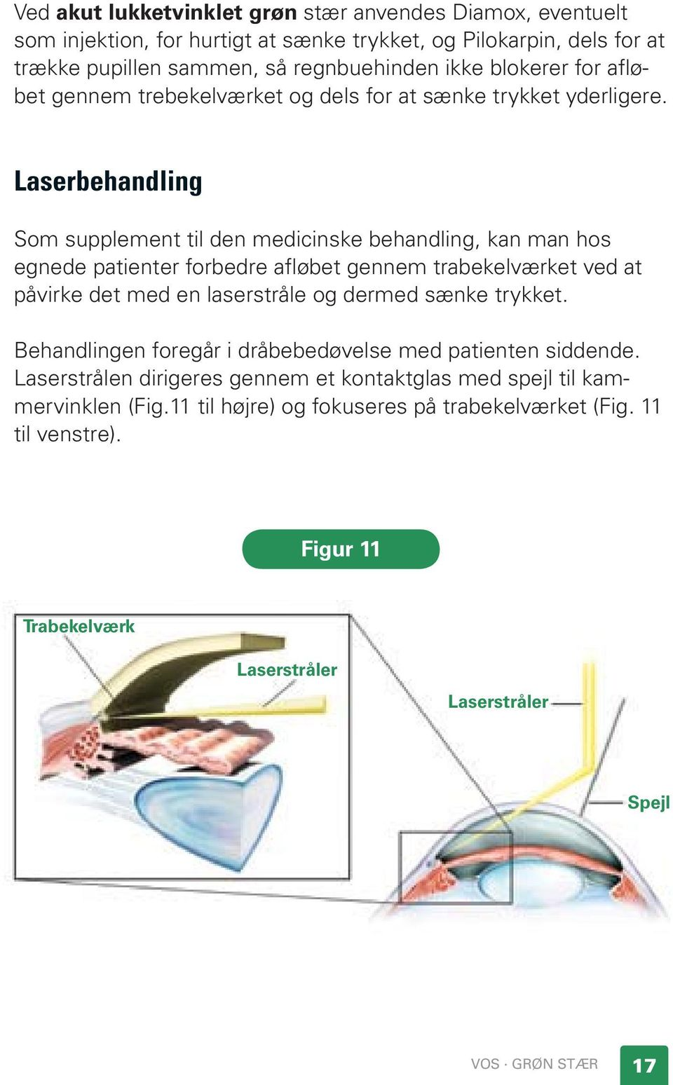 Laserbehandling Som supplement til den medicinske behandling, kan man hos egnede patienter forbedre afløbet gennem trabekelværket ved at påvirke det med en laserstråle og dermed sænke
