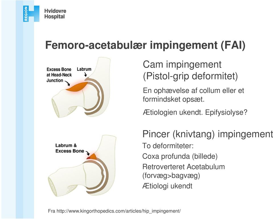 Pincer (knivtang) impingement To deformiteter: Coxa profunda (billede) Retroverteret