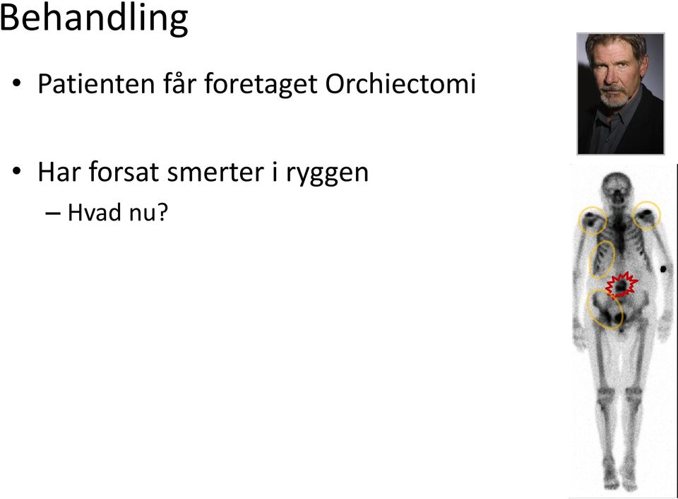 Orchiectomi Har