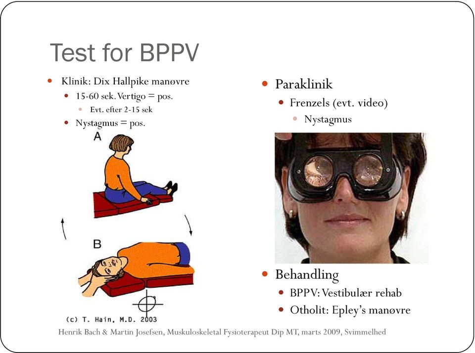 video) Nystagmus Behandling BPPV: Vestibulær rehab Otholit: Epley s