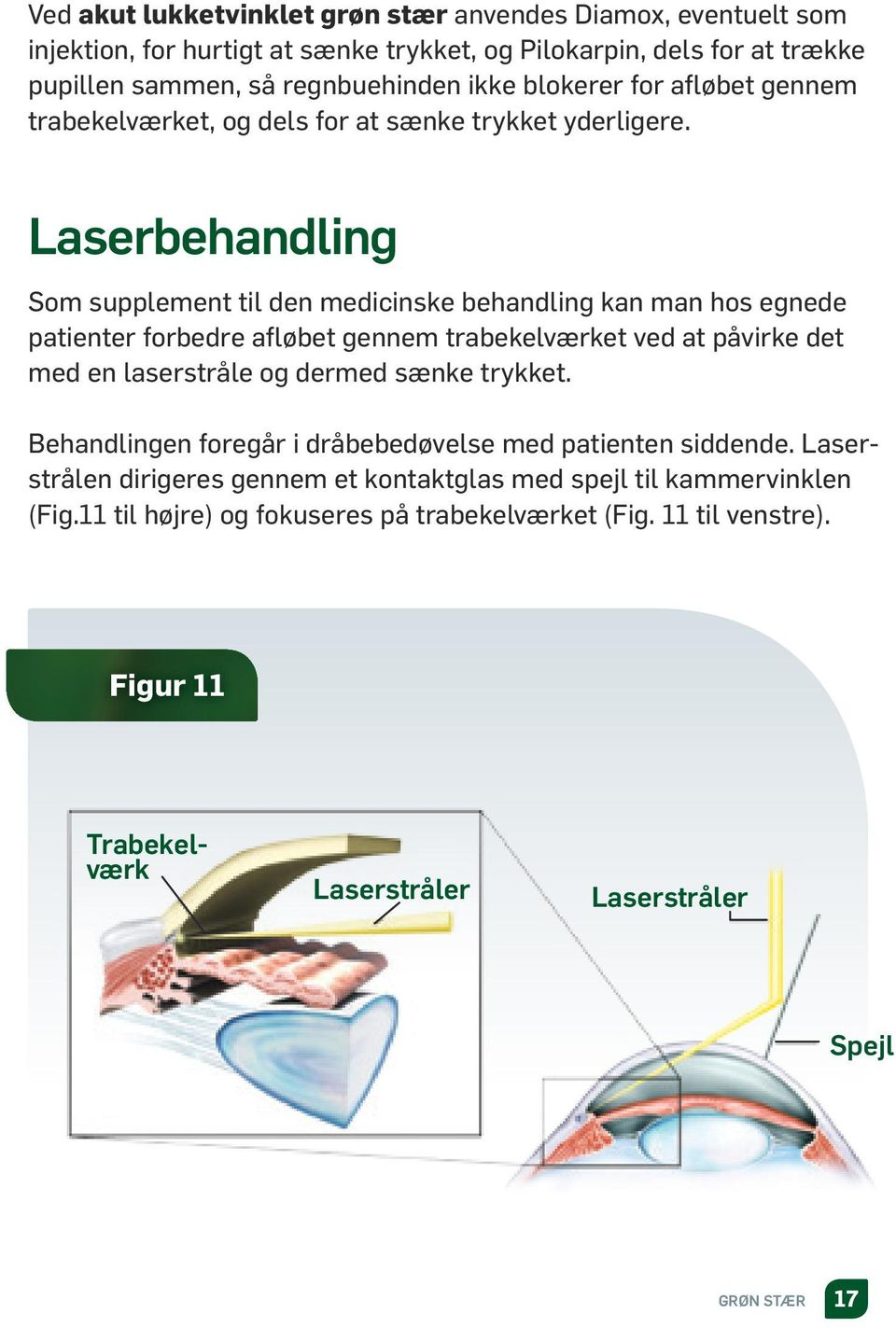 Laserbehandling Som supplement til den medicinske behandling kan man hos egnede patienter forbedre afløbet gennem trabekelværket ved at påvirke det med en laserstråle og dermed