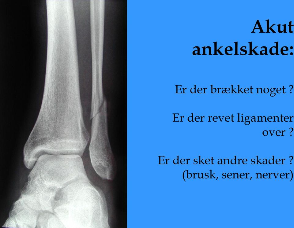 Er der revet ligamenter over?