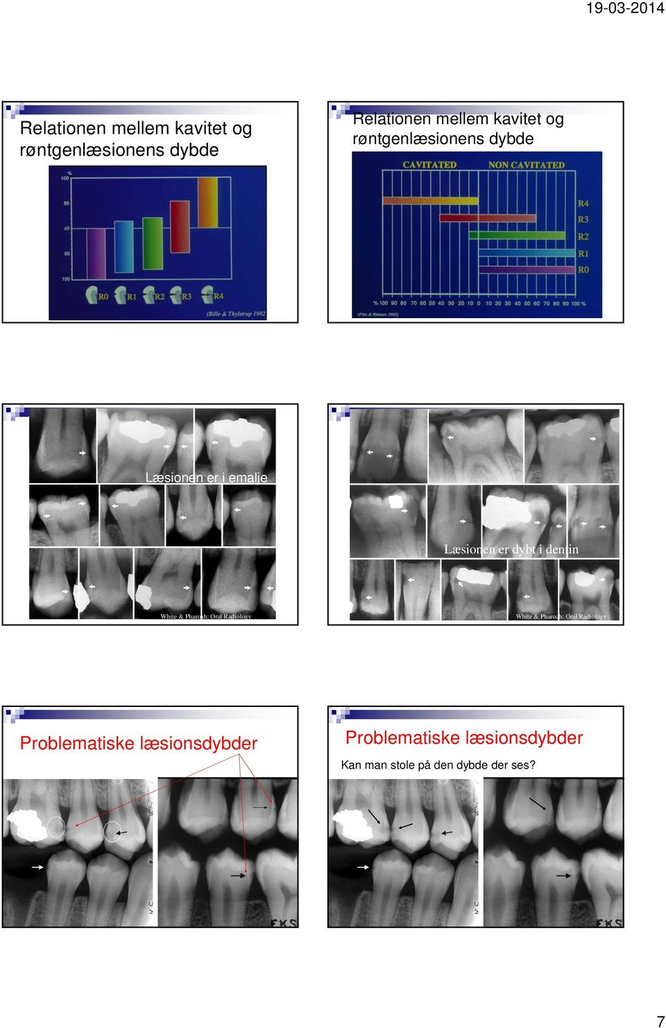 dybt i dentin White & Pharoah: Oral Radiology White & Pharoah: Oral Radiology