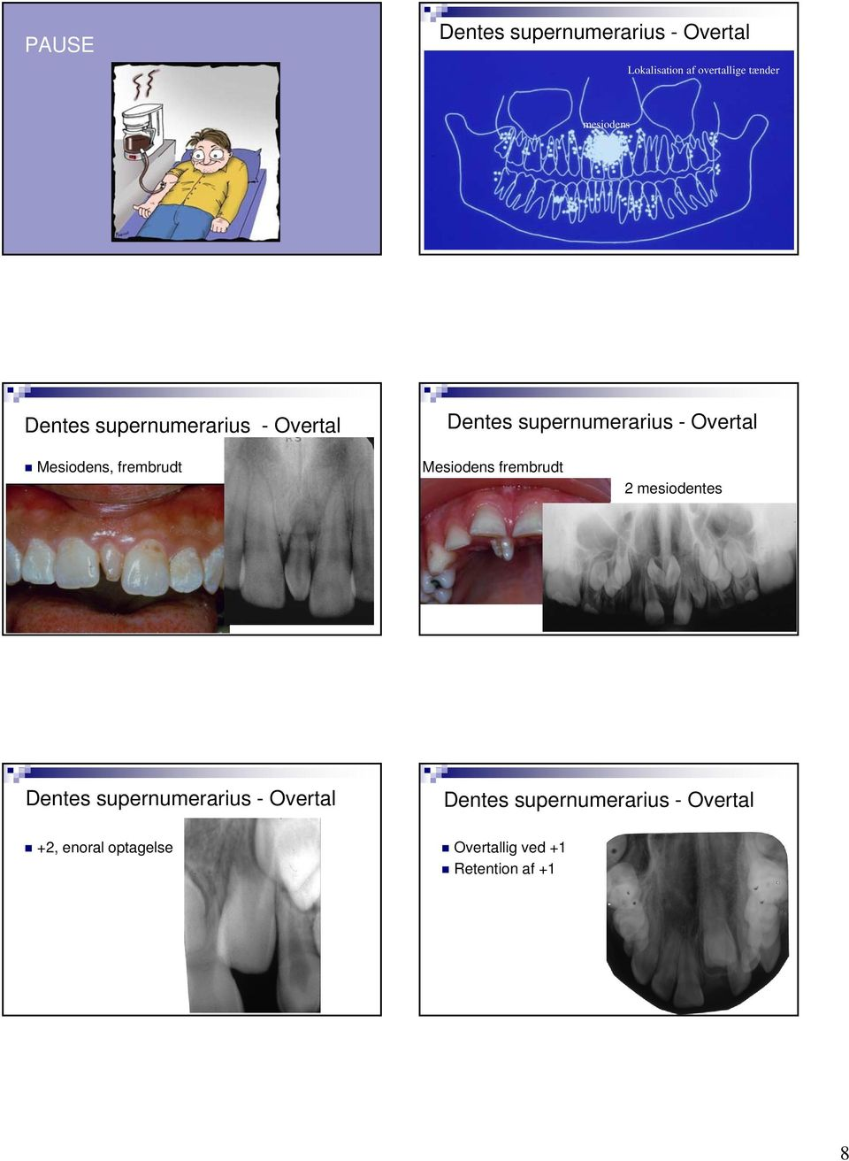 Mesiodens frembrudt 2 mesiodentes +2,