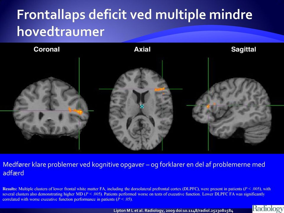 lower frontal white matter FA, including the dorsolateral prefrontal cortex (DLPFC), were present in patients (P <.