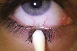Advanced methods to diagnose and monitor Tear film osmolarity Failure of homeostatic tear osmolarity is linked with DED and the osmolarity analysis is regarded by some as the gold standard in DED